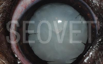 La catarata: definición y tratamiento